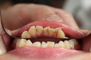 Information about Dental Implants 30