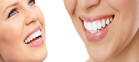 Best offer for Dental Implants 5
